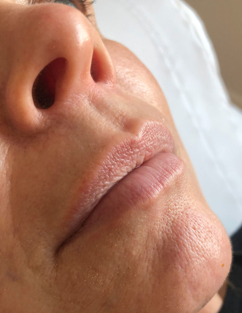 Lip Fillers in Hull Before Photos