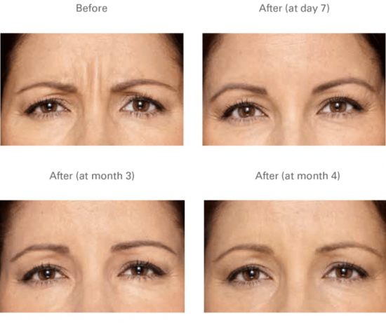 botox-hull-anti-wrinkle-injections