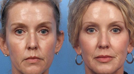 liquid-non-surgical-facelift-hull