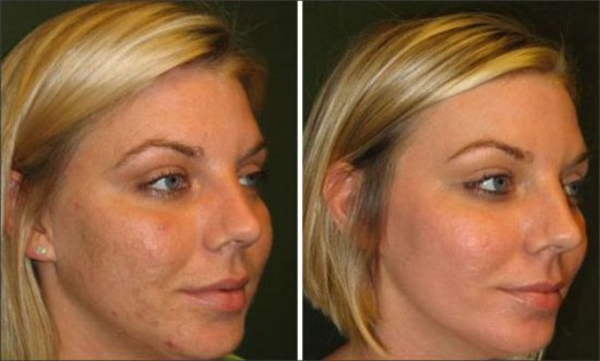 chemical-peel-hull